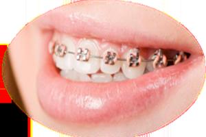 metal or ceramic brackets